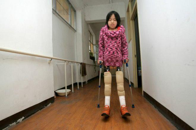 invalid 3